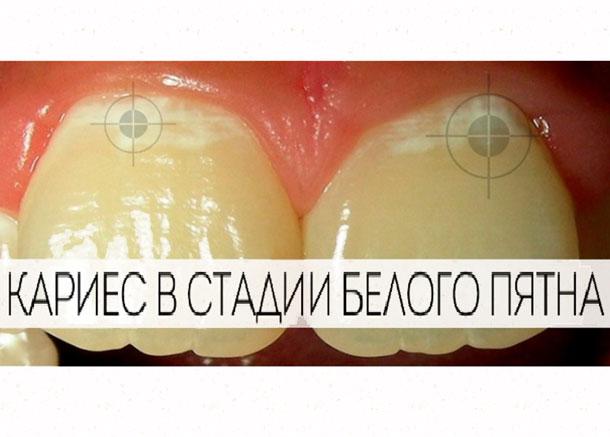 karies-v-stadii-belogo-pyatna