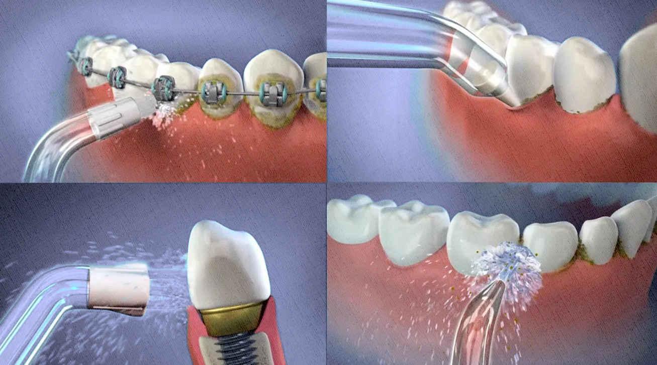 промывка зубов после еды и для профилактики и очистки